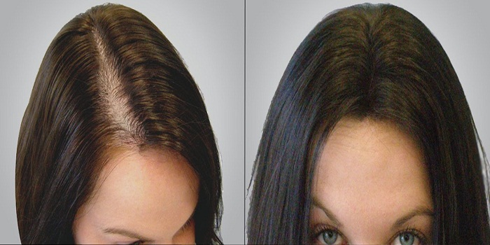 How To Reverse Hair Loss And Grow It Back