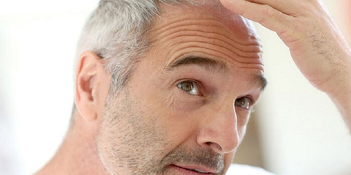 Boost Your Self Confidence With Latest Hair Transplant Treatments