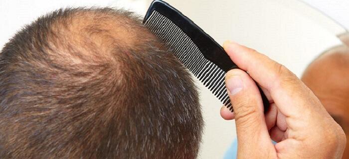 New Hair Loss Treatments