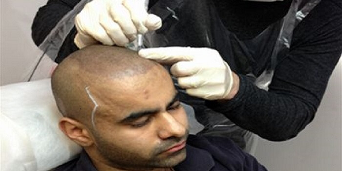 Surgical Hair Loss Treatments